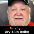 Finally... Dry Skin Relief
