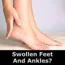 Swollen Feet and Ankles?