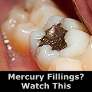 Mercury Fillings? Watch This