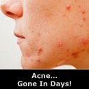 Acne Gone In Days