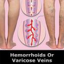 Are Hemorrhoids Like Varicose Veins